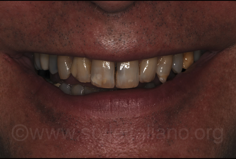 patient with ugly teeth smiling