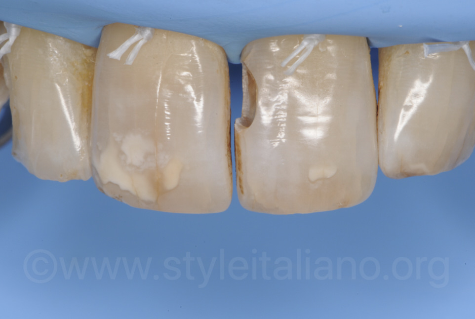 messia cavity on central incisor