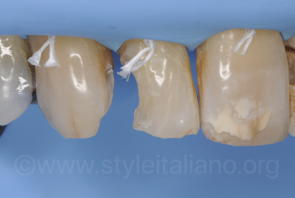 distal cavity on lateral incisor