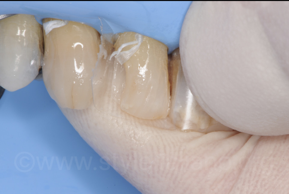 transparent matrix for palatal composite layering