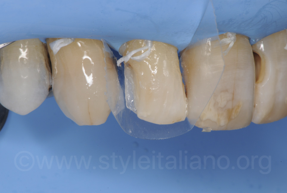 transparent matrix for composite restoration of lateral incisor