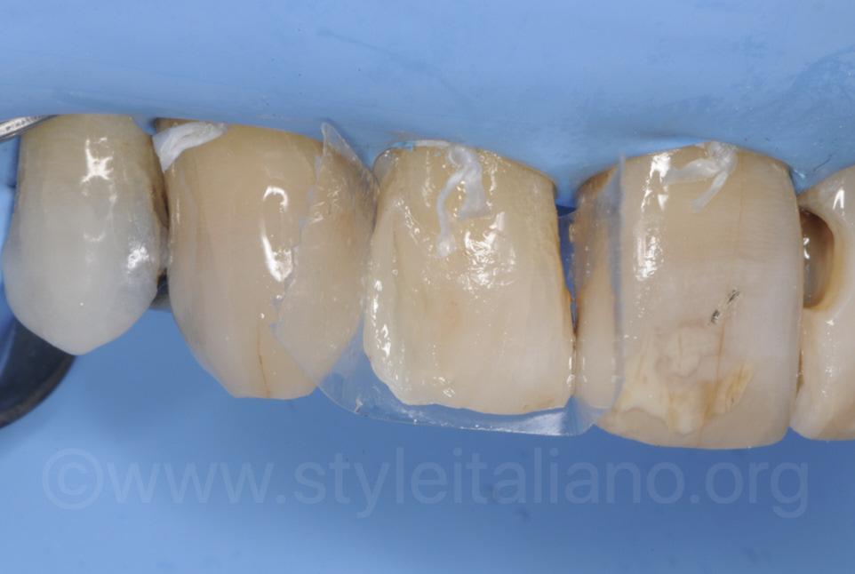layering of composite to restore lateral incisor