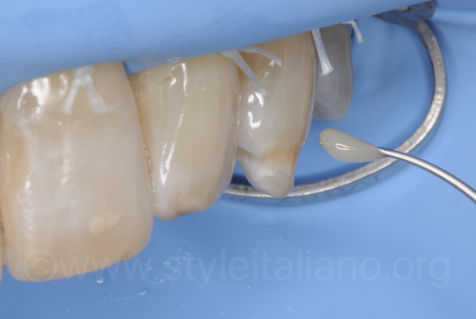 opaque composite with fissure instrument for staining