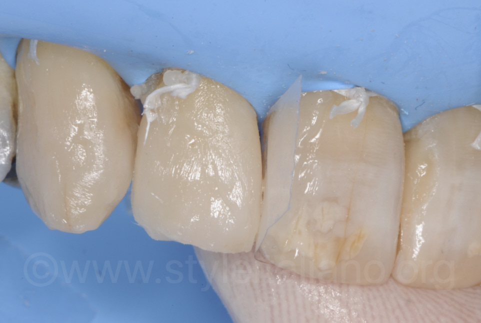 enamel layering with composite