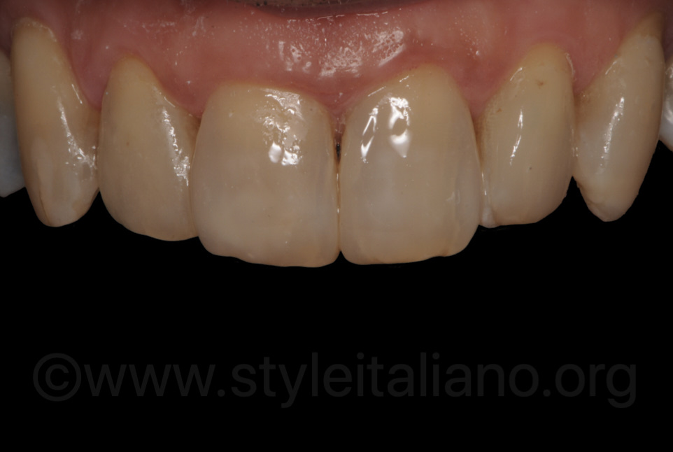 composite veneers after rehydration