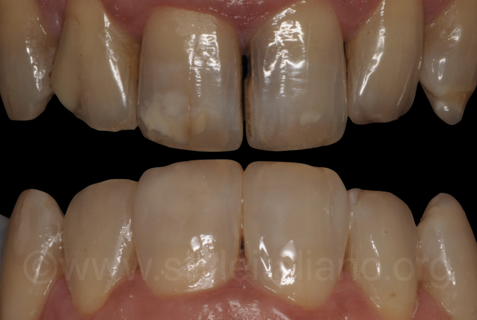 before and after direct veneering with composite
