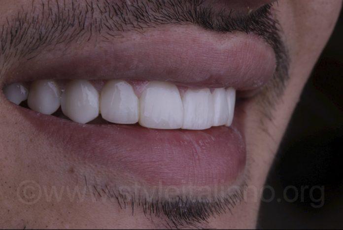 direct white composite veneers sexy smile
