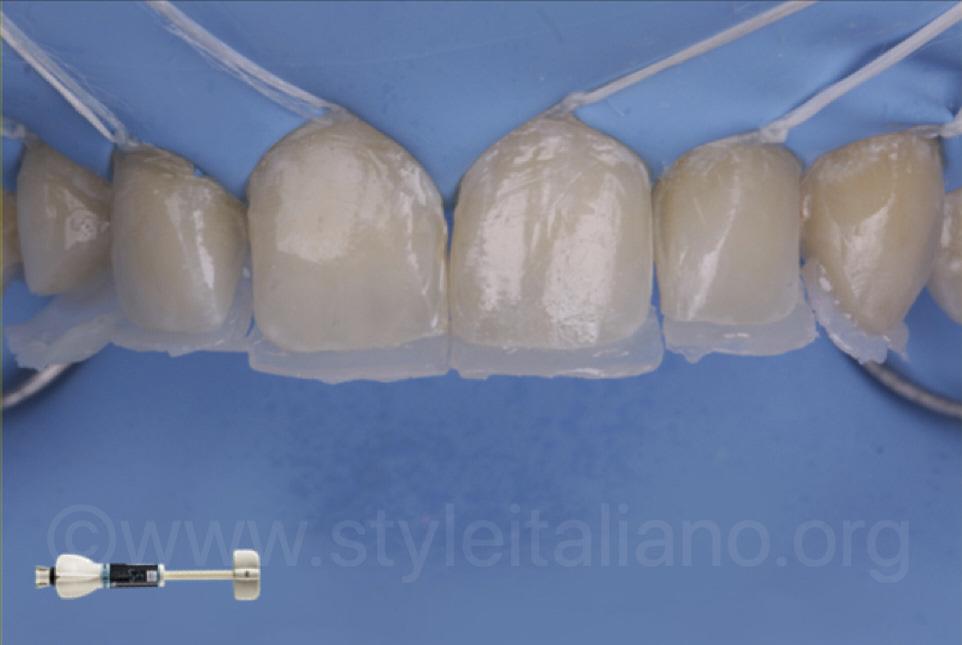 palatal composite shells