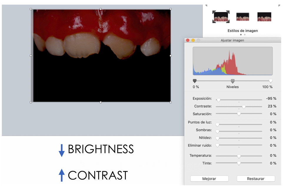 dental color mappin with keynote anterior teeth composite restoration
