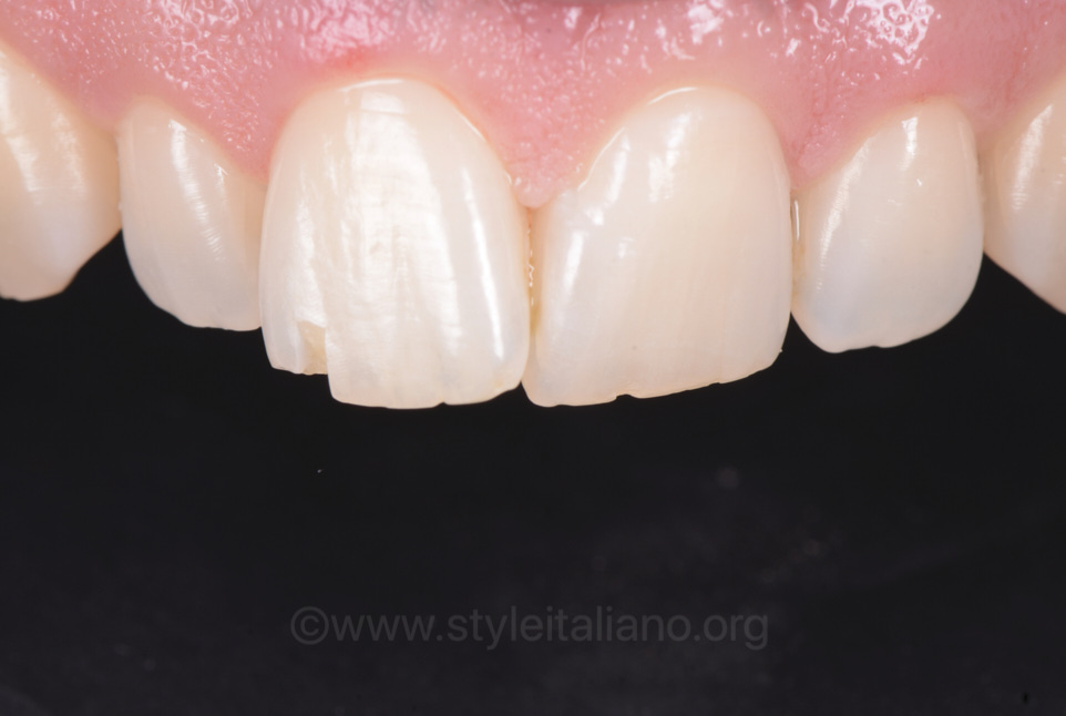 chipped upper incisor composite restoration anterior restoration fast food restoration single mass approach
