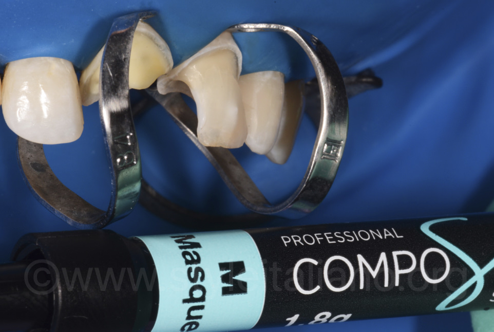 professional composite system white dental beauty shade composite veneers