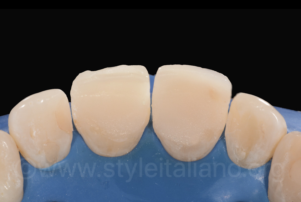 palatal fillings on incisors