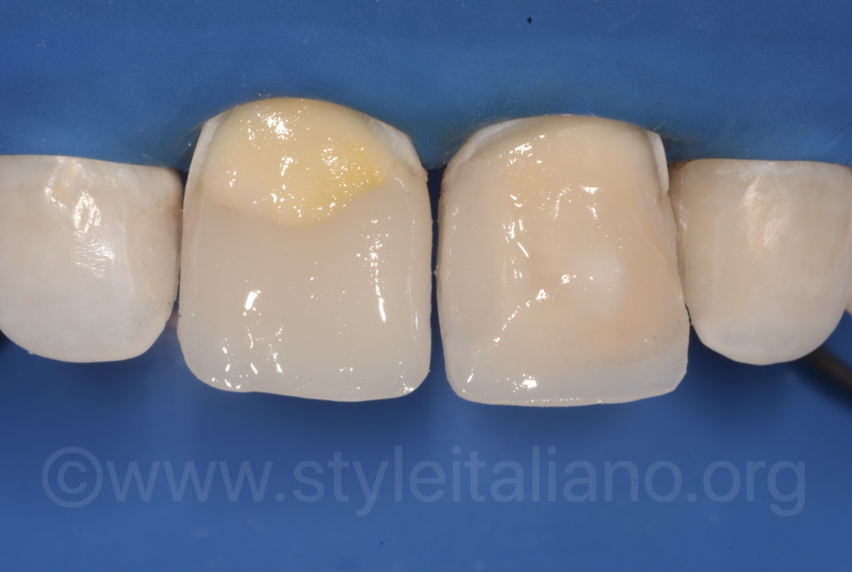 layering of composite on central incisors