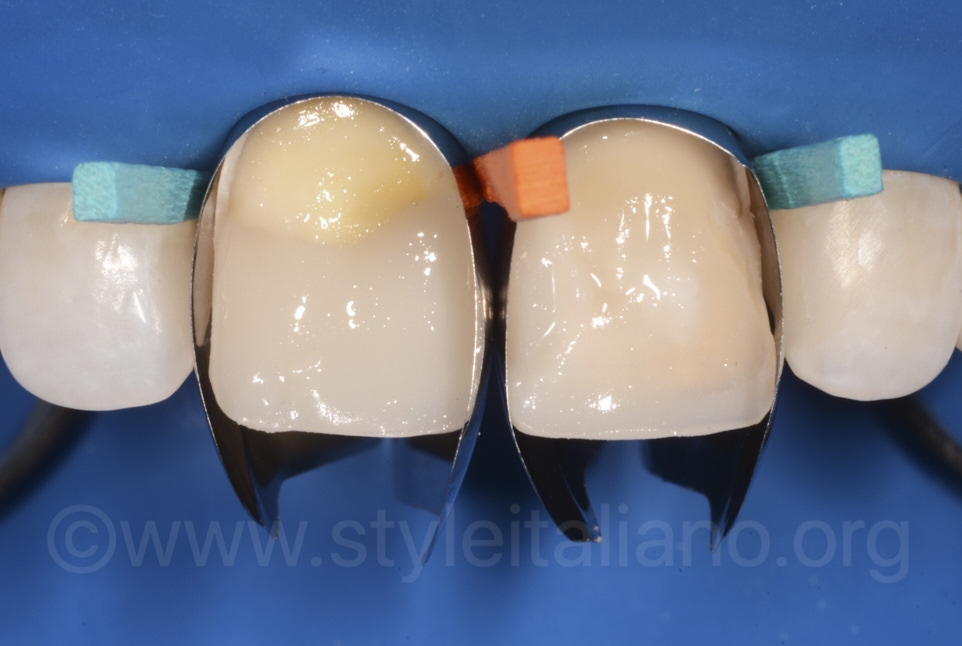 unica matrices for incisor reshaping with direct composite veneers restoration
