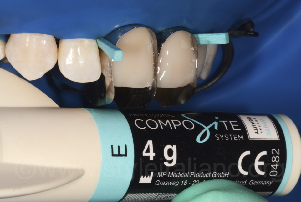 enamel composite layering with white dental beauty professional composite system and unica matrices