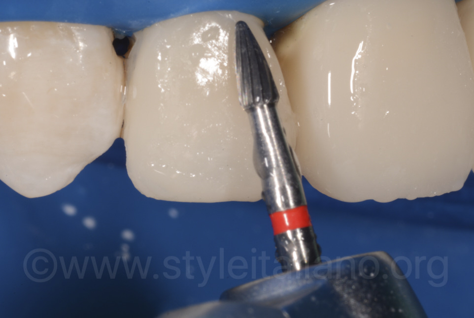 finishing of composite restoration on lateral incisor