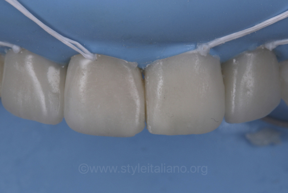 finished layered direct composite veneers