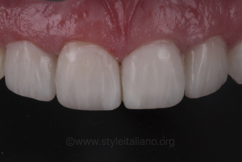 finished direct composite veneers on upper incisors