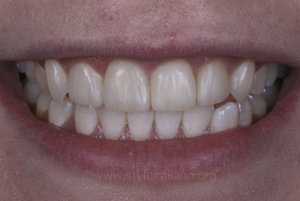 smile with new direct composite veneers