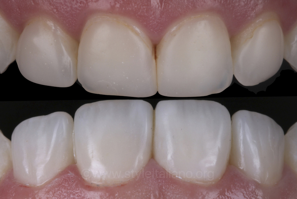 before and after veneer replacement