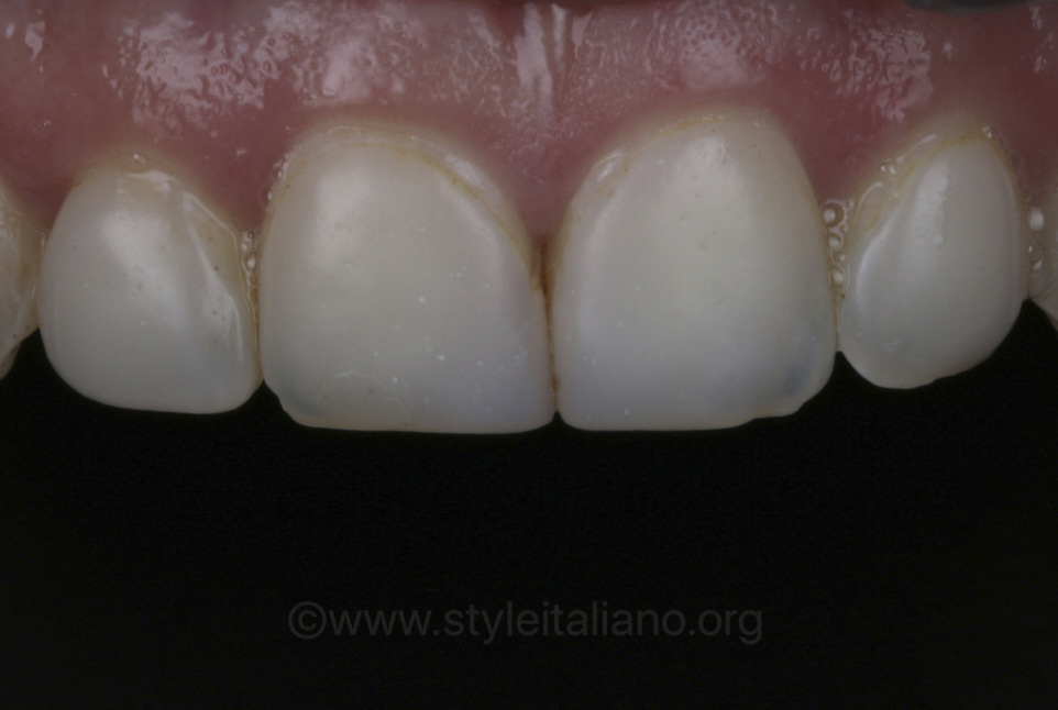 old discoloured composite veneers on upper incisors