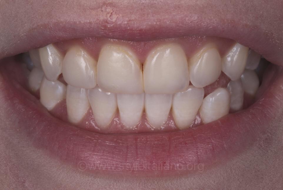 teeth after bleaching