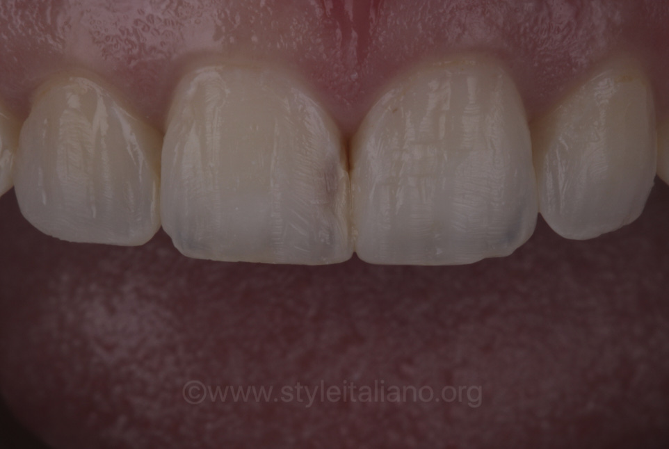 old composite removal