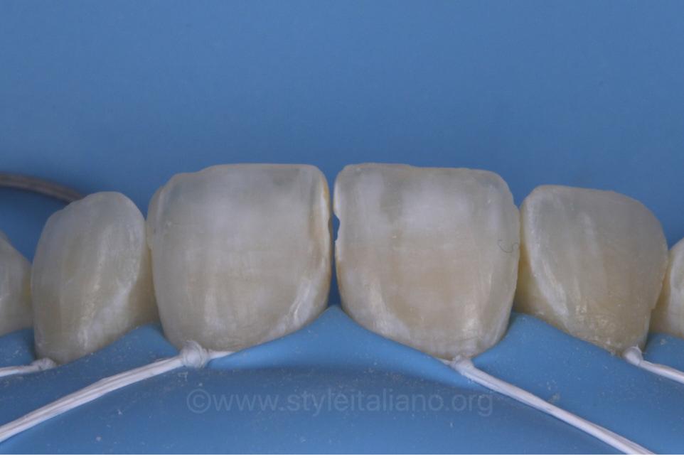 floss ligatures for gum retraction