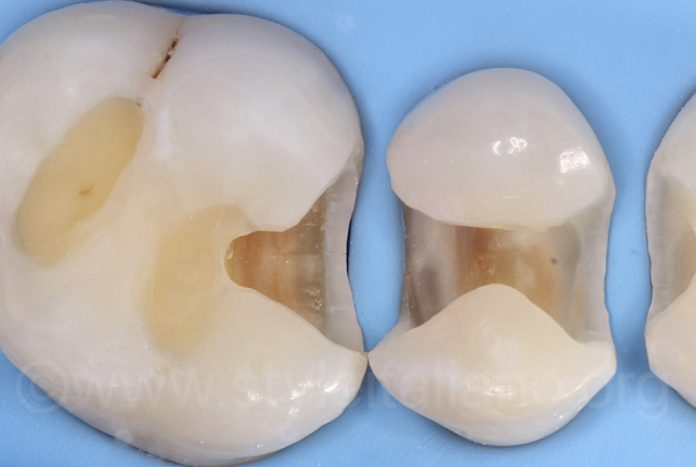 rubber dam sublingual isolation with clean cavities