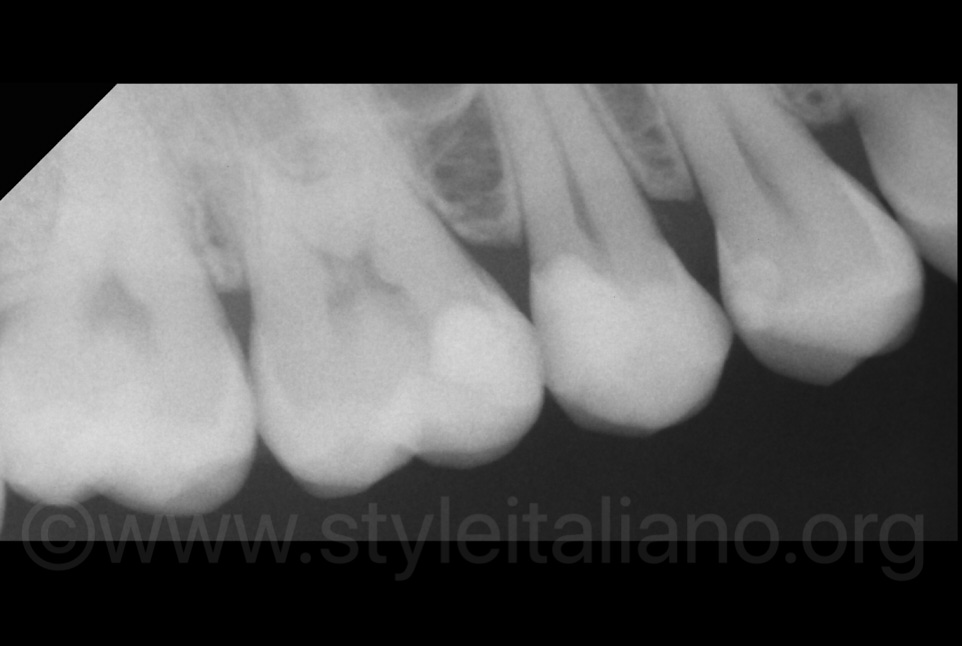 xray after composite fillings