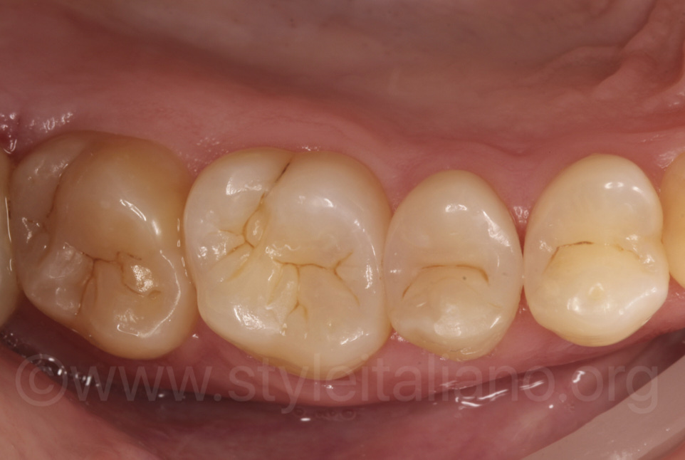 composite fillings after rehydration