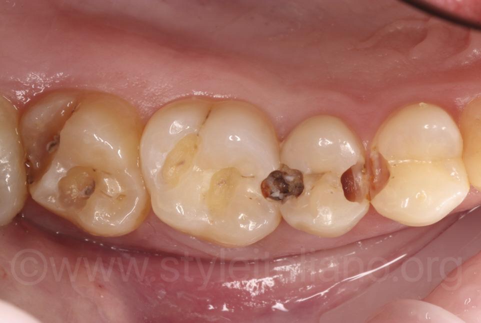caries on upper teeth