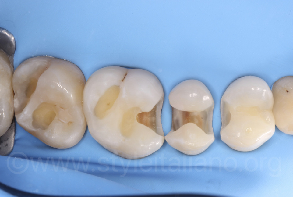 isolated upper quadrant with clean cavities