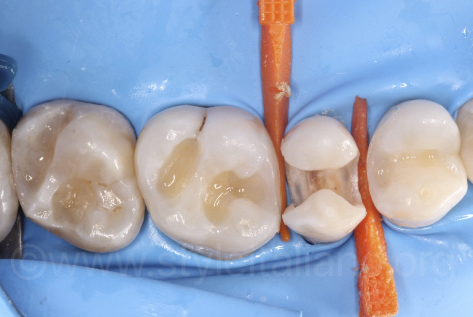 bulk filling deep cavities