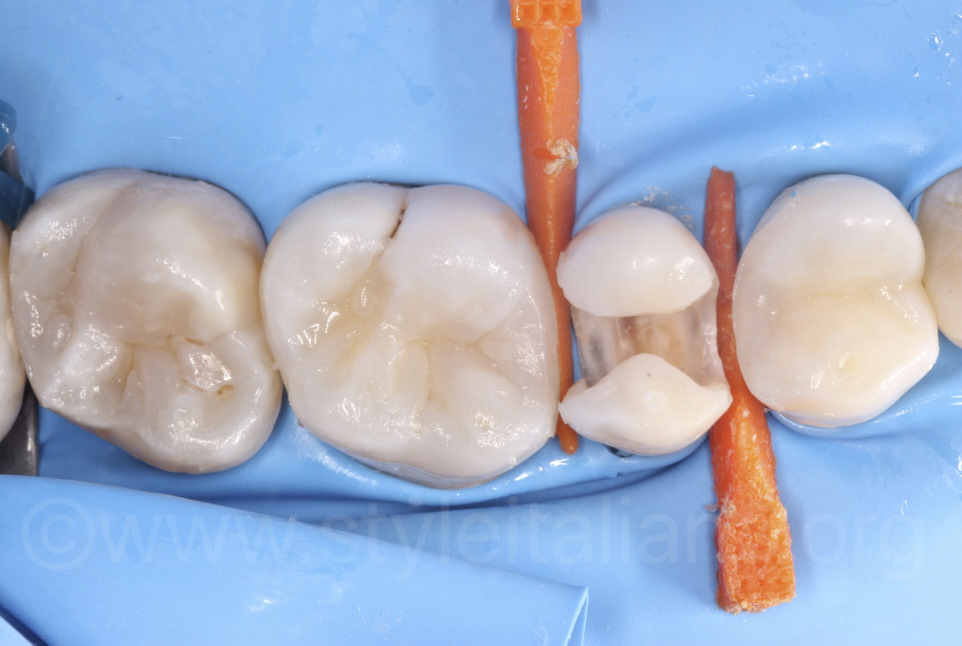 composite restoration of upper molars