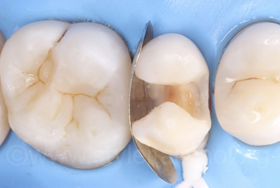 floss ligature and anatomical matrix for mod premolar cavity