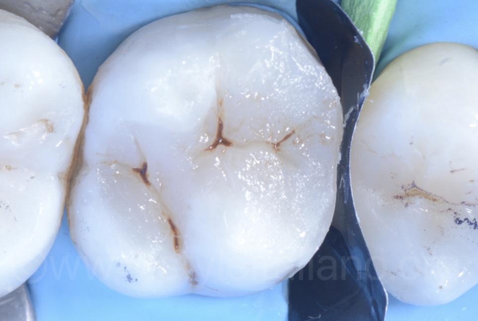 direct facing restorations neighboor teeth