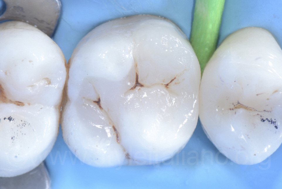 direct facing restorations of occlusal surface