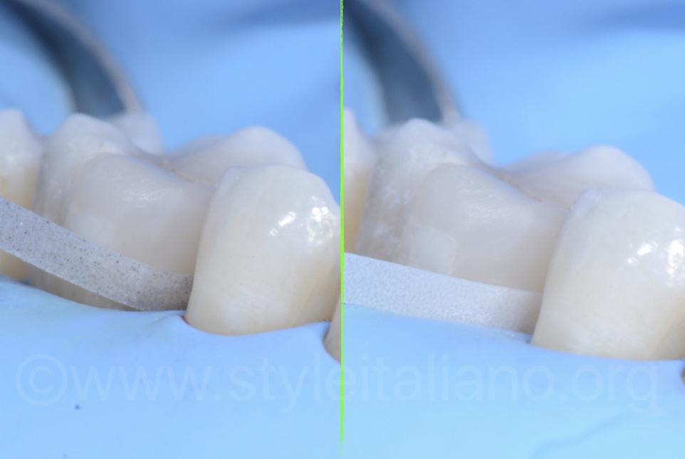 direct facing restorations polish the cervical