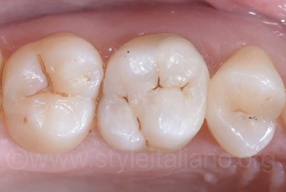 direct facing restorations one year control
