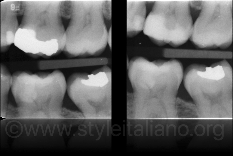 direct facing restorations rx before and after