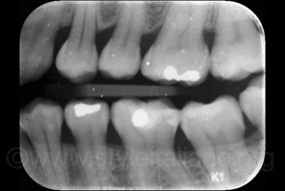 left bitewing X-ray