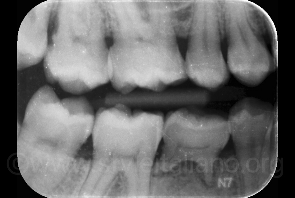 right bitting X-ray with baby tooth