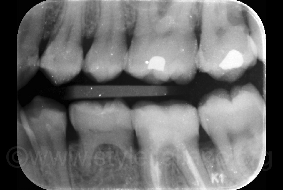 right bitewing X-ray showing no caries