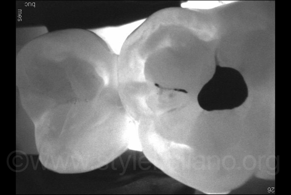 diagnocam image for proximal caries