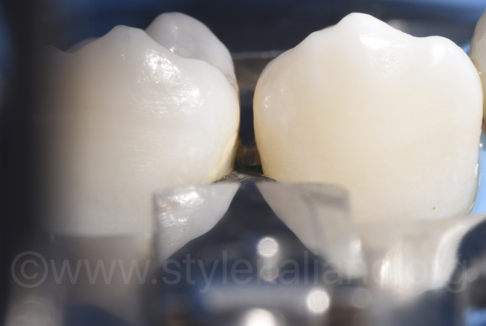 dentech ivory separator for access to caries