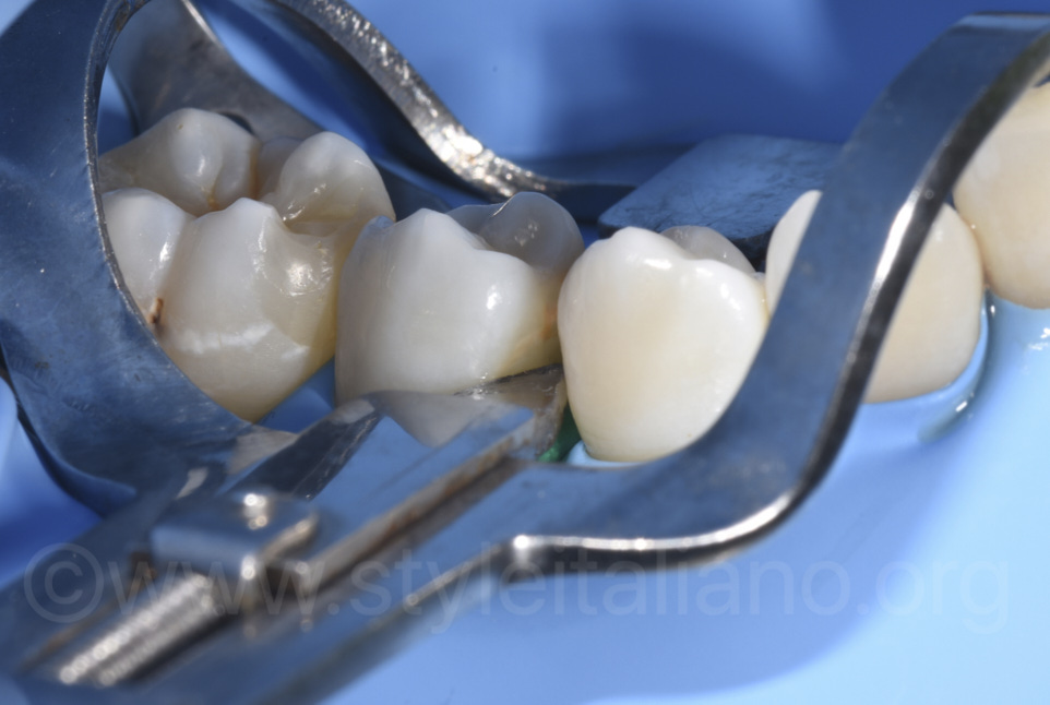 accessibile proximal space thanks to ivory separator