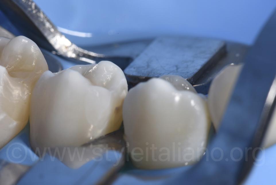fading brown spot on premolar