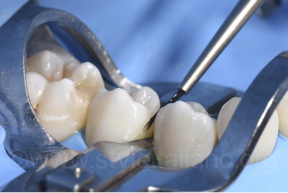 resin application on premolar