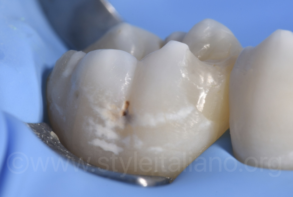 white spots on lower molar and cavity